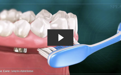 Caring for a Hybrid Denture