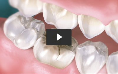 Repairing A Cracked Tooth With A Crown