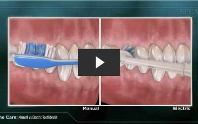 Manual Toothbrush versus Electric Toothbrush