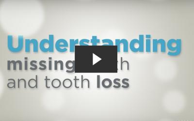 Understanding Missing Teeth & Tooth Loss