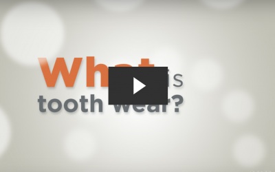 Understanding Tooth Wear